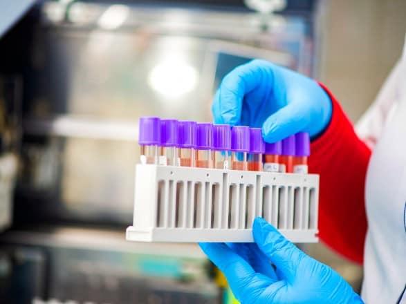 На Закарпатті підтверджено сім нових випадків захворювання на COVID-19
